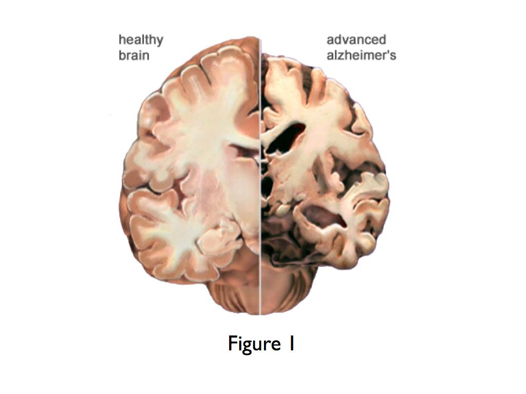 How does dementia affect the body?